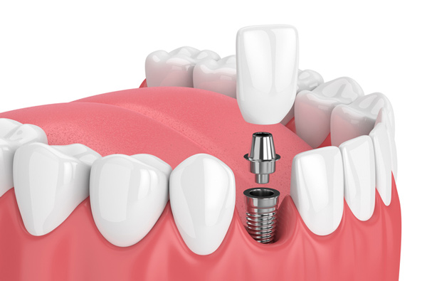 Clarity on Dental Implant That Help in Making Right Decision